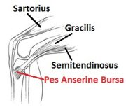 Pes Anserine Bursitis is one of the less common causes of medial knee pain