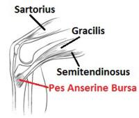 Pes Anserine Bursitis often causes pain on stairs