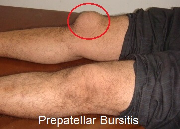 Prepatellar bursitis, aka housemaids knee, is the most common cause of swelling at the front of the knee. Find out about the causes, symptoms, diagnosis and treatment options.