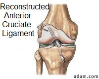 ACL surgery is a commonly performed knee operation