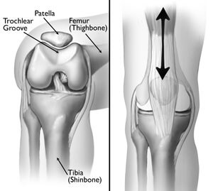 (Left) The patella normally rests in a small groove at the end of the femur called the trochlear groove. (Right) As you bend and straighten your knee, the patella slides up and down within the groove.