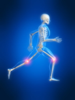 Despite the knee, Runners knee affects both runners and people who spend long periods sitting