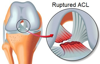 The anterior cruciate ligament (ACL) is frequently injured, especially in athletes