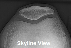 Skyline view showing the back of the patella