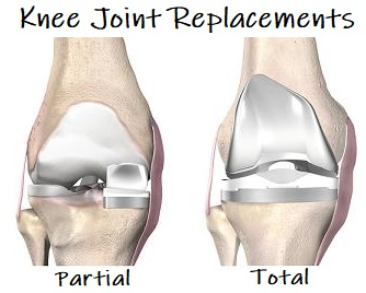 The different types of knee joint replacement