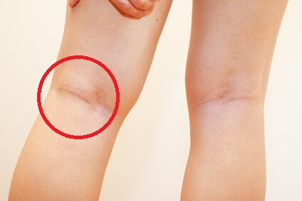 Swelling Behind The Knee: Causes & Treatment