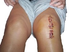 Knee replacement recovery time will be affected by what you do before and after your operation
