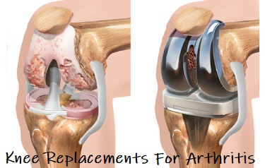 Total Knee Replacement Surgery: Find out what happens before, during and after surgery and how to make the best recovery