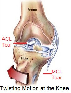 Twisted knee injuries may affect the ligaments, cartilage and surrounding soft tissues. Find out about the common causes, symptoms, diagnosis & treatment