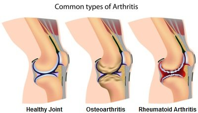 Image result for image of arthritis in the knee
