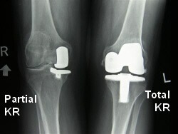 Partial knee replacement vs Total knee replacement