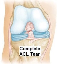 A twisted knee can result in a complete ACL tear