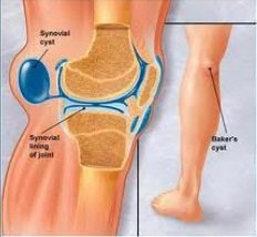 A Bakers cyst is one of the most common causes of pain behind the knee
