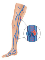 Find out how to tell if you have a blood clot in your leg