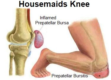 Housemaids Knee - find out about the causes, symptoms, diagnosis and treatment of prepatellar bursitis