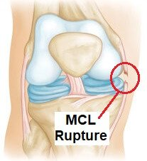 Medial knee pain is often the result of an MCL tear