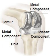 Total knee surgery involves replacing the worn part of the knee with a new joint