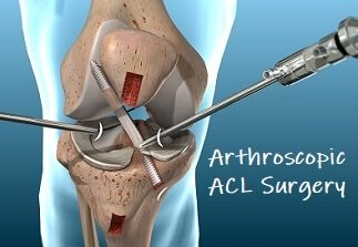 ACL Knee Surgery: What does it involve and how do you make the best recovery?
