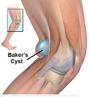 Find out all about the best bakers cyst knee treatment options for a popliteal cyst, a common cause of pain and swelling behind the knee