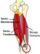 Biceps Femoris tendinopathy causes lateral knee pain