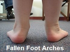 Having flat feet makes subtle changes to the angle of the knee which increases your risk of developing pes anserine bursitis