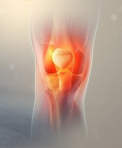 Find out about the most common causes of knee cap pain