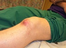 Gout is one of the most common causes of burning knee pain