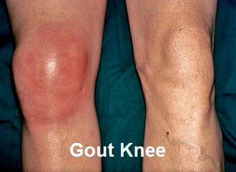 Find out about the common causes, symptoms, diagnosis and treatment of Gout Knee