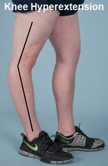 Hyperextended knee - the knee bends backwards beyond neutral