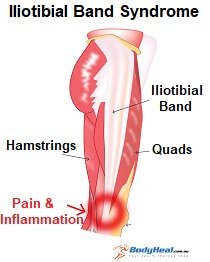 Lateral knee pain occurs on the outer side of the knee
