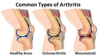 Both types of arthritis can result in a nagging, burning, toothache type pain