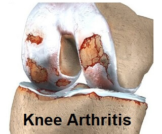 Exercises for arthritis are one of the most effective treatments for knee arthritis.