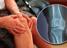 Knee Arthritis: Causes, Symptoms & Treatment