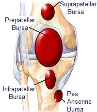 Inflammation of any of the bursa around the knee can cause burning knee pain