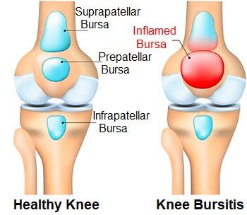 Knee Bursitis - a common cause of Knee Pain When Kneeling
