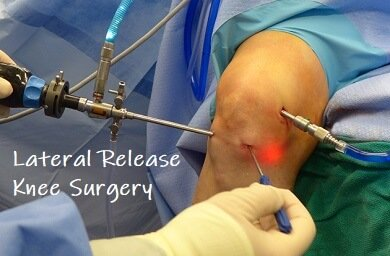 Lateral Release Knee Surgery: Find out what's involved and how to make the best recovery
