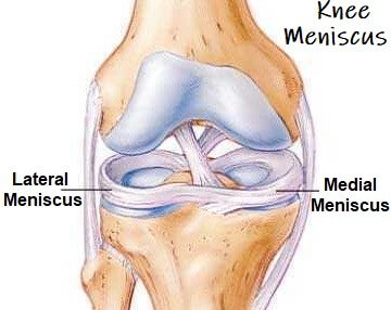 Knee Meniscus Guide: Find out everything you need to know about this special cartilage that lines the knee joint to help protect it
