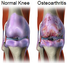 How to treat knee arthritis pain