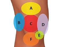 Knee Pain Diagnosis Chart: Find out what is causing your knee pain and how best to treat it