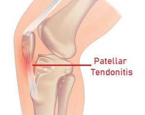 Knee Pain When Kneeling: Patellar Tendonitis. Find out about the causes, symptoms and treatment options