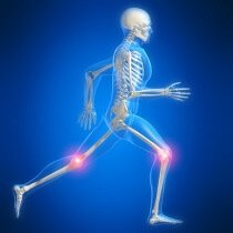 Knee pain from running is extremely common