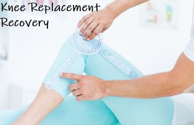 Knee Replacement Recovery Time: Find out what you can do to make the best recovery after knee replacement surgery