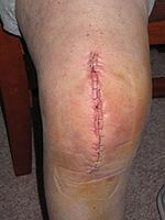 Total knee replacement scar with staples