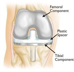 Total knee replacements are the most common knee operations carried out for arthritis