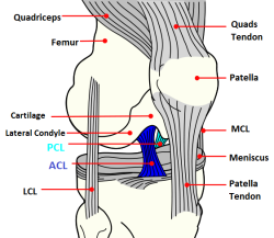 Diagram showing the knee ligaments.  The ACL is shown in dark blue, the PCL in light blue