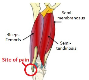 biceps femoris tendinopathy causes lateral knee pain