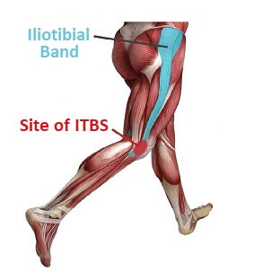 Iliotibial band syndrome is a common cause of lateral knee pain, especially in runners