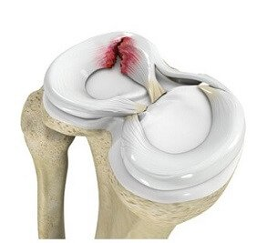A tear in the meniscus can cause lateral knee pain