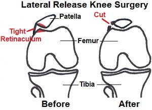 Lateral release knee surgery involves cutting the tight lateral retinaculum to allow the kneecap to return to its normal position