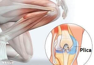 Medial Plica Syndrome causes inner knee pain